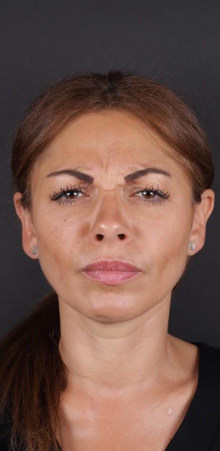 Behandling Bekymmersrynka Art Face