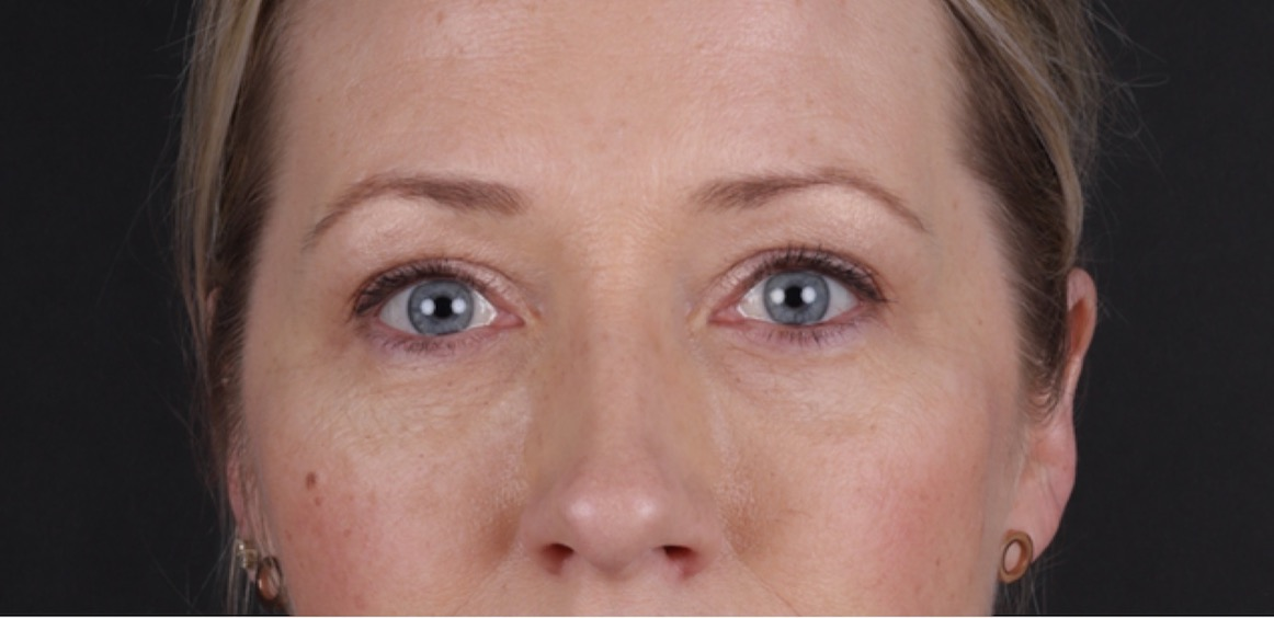 Behandling Injektion under Ögon