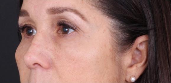 Behandling Trötta Ögon