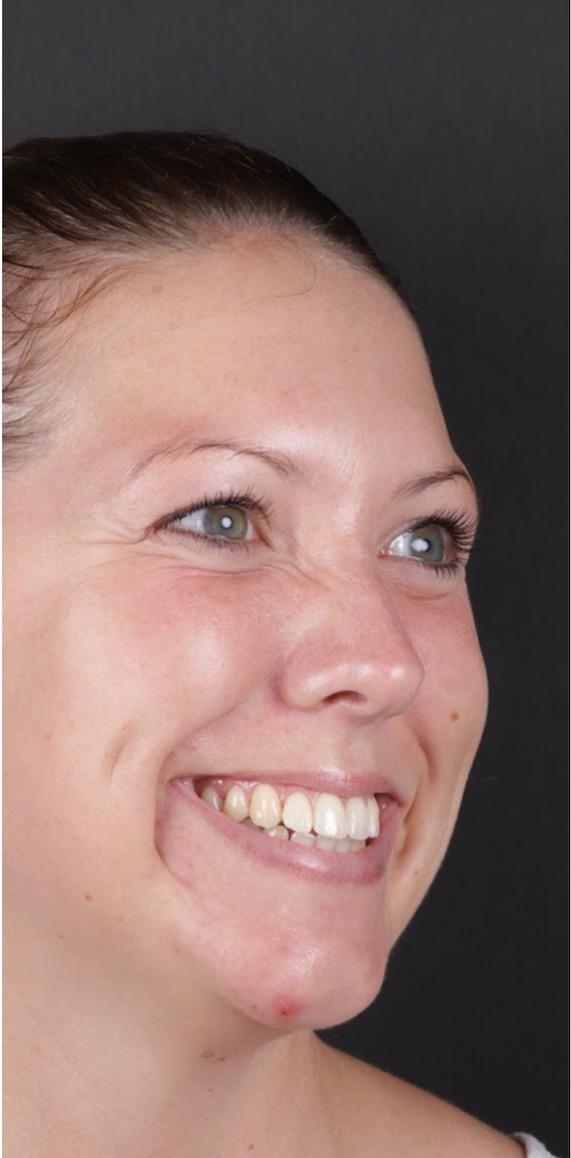 Behandling Gummy Smile Art Face