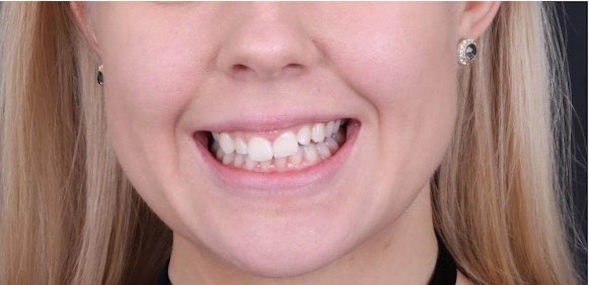 Gummy Smile Behandling