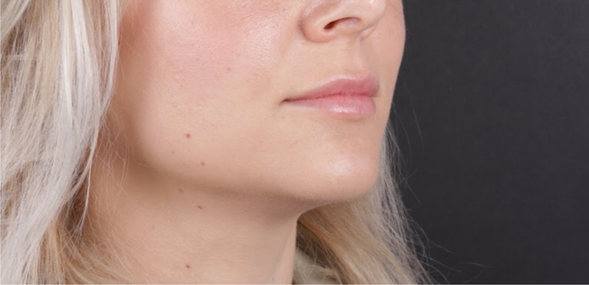 Diskret Försoring av Läppar