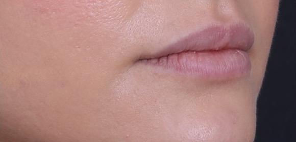 Behandling Läppar Art Face