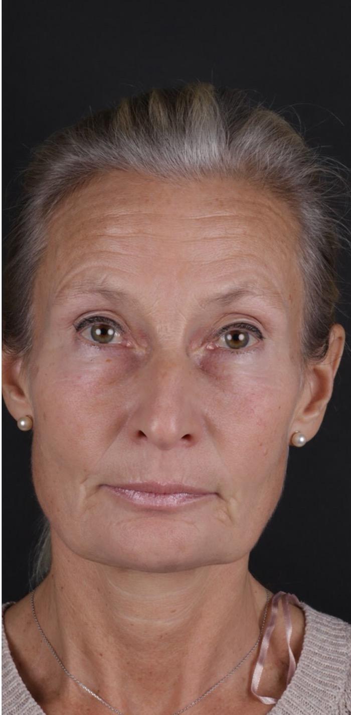Behandling Sura Mungipor Art Face