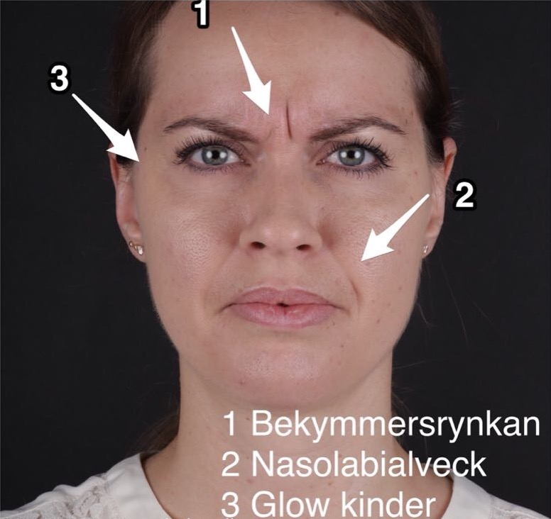 Behandling Nasolabialveck Art Face
